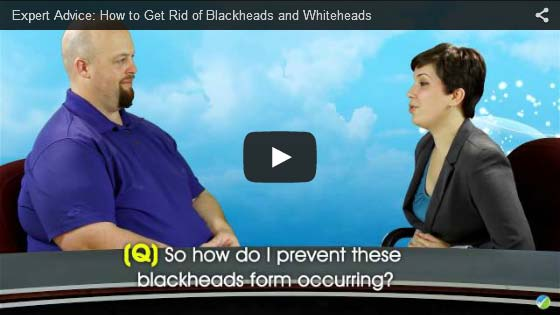 Blackheads and Whiteheads
